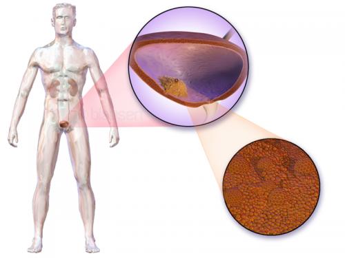 Лечение рака мочевого пузыря за границей