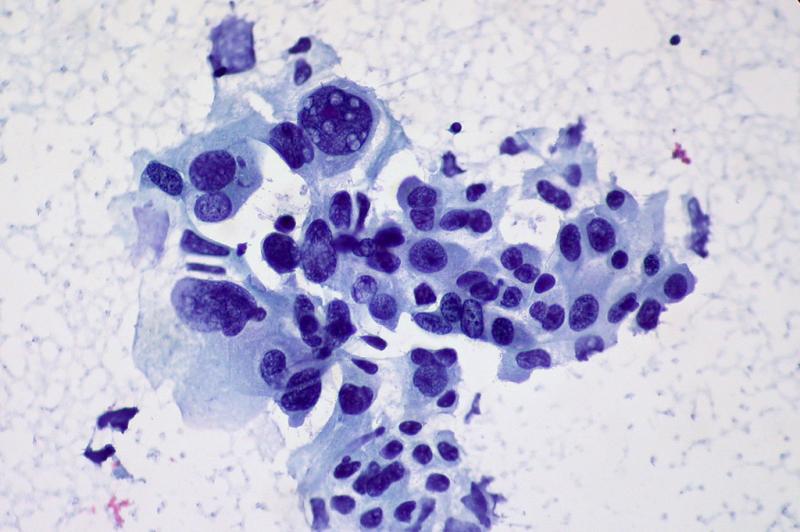 Метастатический рак