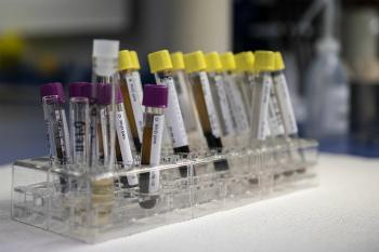 Лечение лимфогранулематоза за рубежом