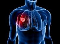современная диагностика рака легких