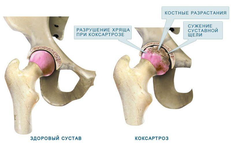 Удаление тазобедренного сустава что выводит соль из суставов
