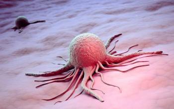 Рак матки: метастазы и их лечение